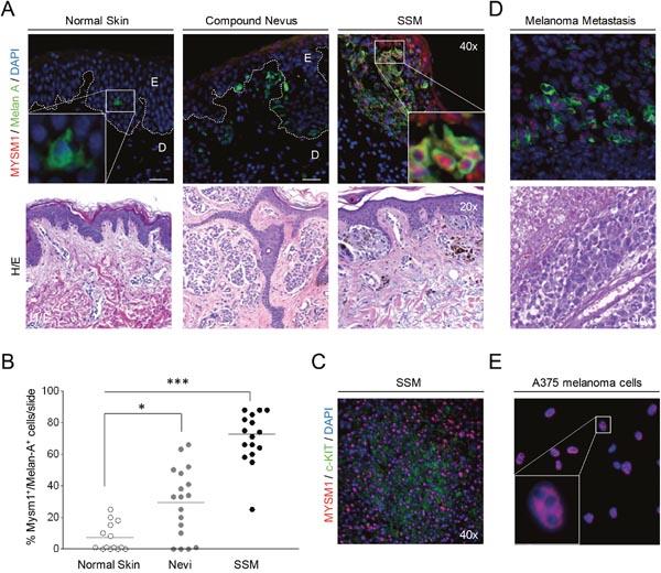MYSM1 expression in normal human skin, nevi, primary melanoma, and melanoma metastases.