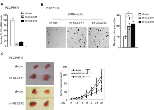 Knockdown of GLS2 promotes anchorage-independent growth of HCC cells and growth of HCC xenograft tumors.