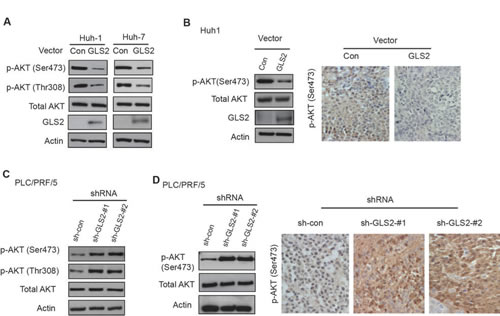 GLS2 negatively regulates the PI3K/AKT signaling in HCC cells.