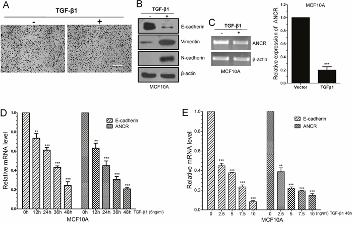 LncRNA ANCR was down-regulated in TGF-β1 induced EMT.