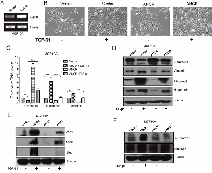 Overexpression of ANCR suppressed TGF-β1 induced EMT.