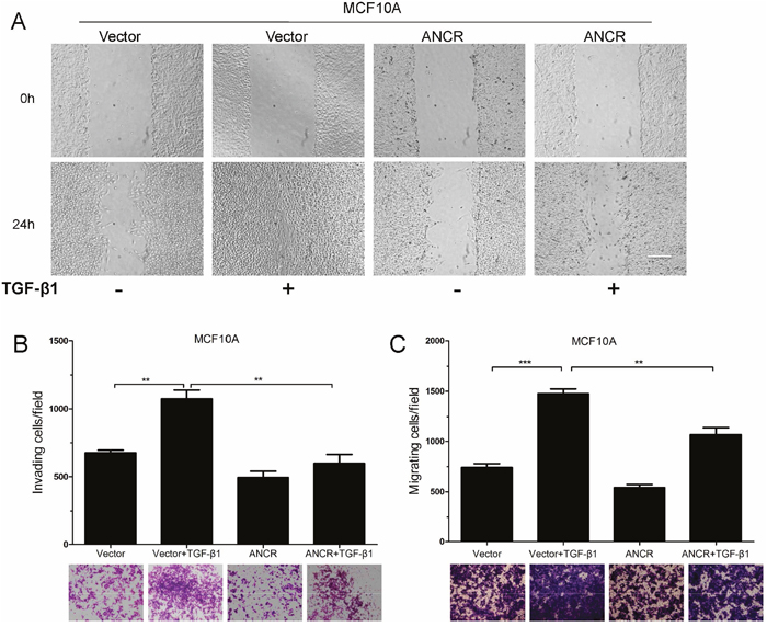 Overexpression of ANCR inhibited TGF-β1 induced migration.