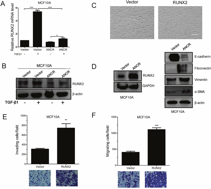 ANCR attenuated TGF-β1 induced EMT and migration by decreased RUNX2 expression.