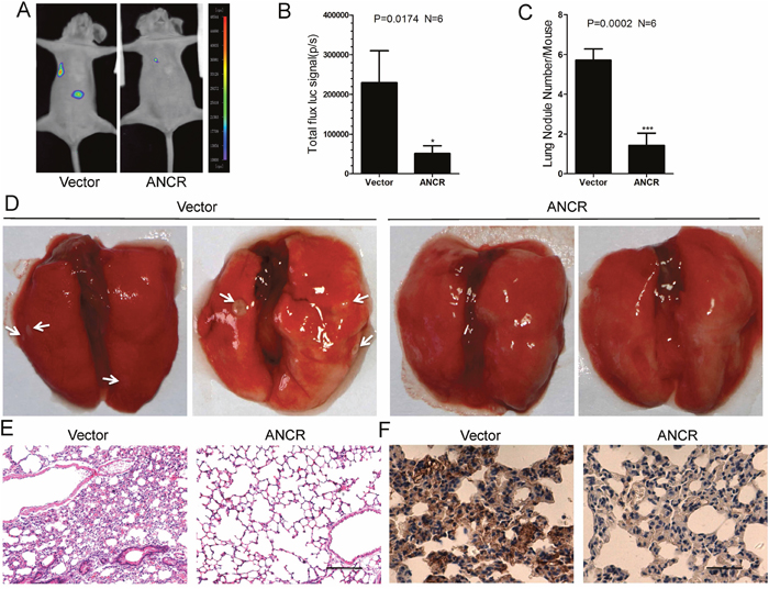 ANCR inhibited breast cancer metastasis in vivo by down regulation of RUNX2.