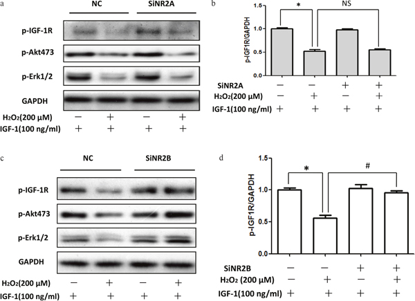 siRNA NR2B knockdown reversed the inhibitory effect of H2O2 on the pro-survival signaling of IGF-1 in SH-SY5Y cells.