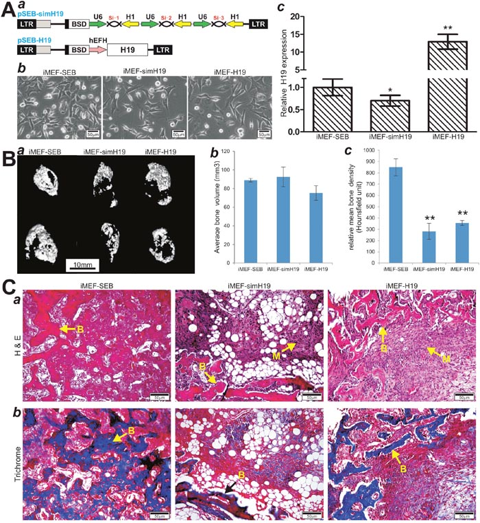 Stable overexpression and silencing of lncRNA H19 inhibit BMP9-induced ectopic bone formation in vivo.