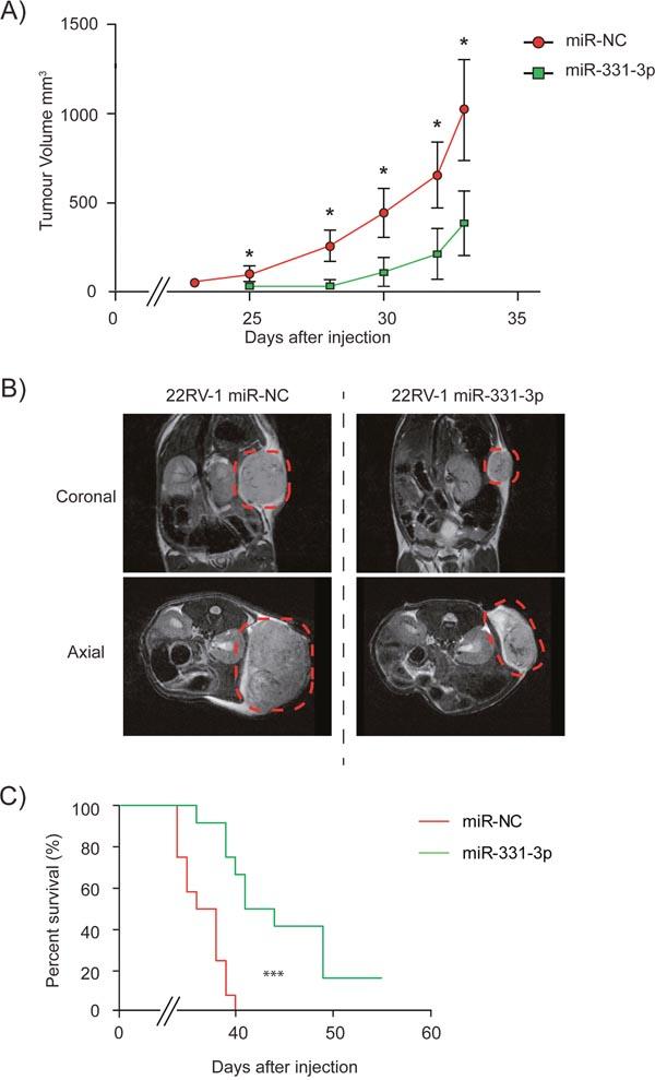 miR-331-3p inhibits PCa xenograft tumor growth.