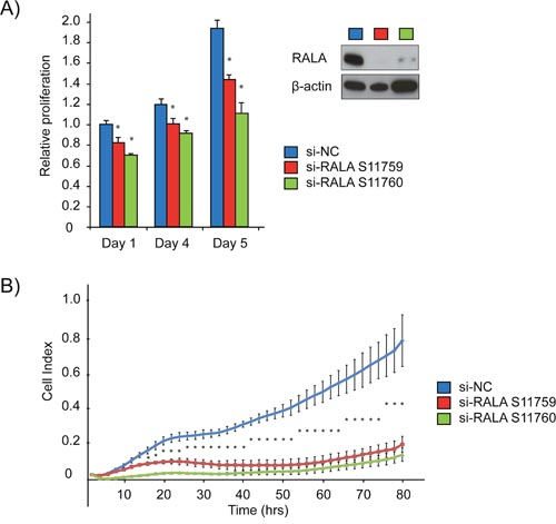 siRNA mediated inhibition of RALA expression reduces proliferation of PCa cells.
