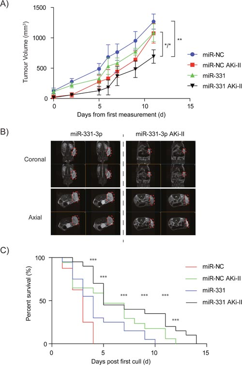 The effects of miR-331-3p and AKi-II pre-treatment of PCa cells on 22Rv1 xenograft growth.