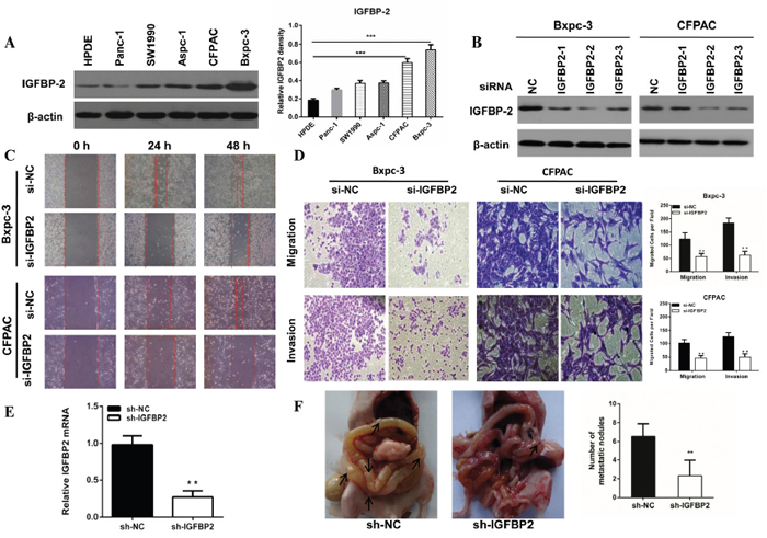 The expression of IGFBP-2 in pancreatic cancer cell lines and knockdown of IGFBP-2 inhibits pancreatic cancer cells migration and invasion.