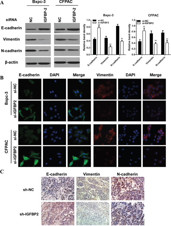 Knockdown of IGFBP-2 attenuates EMT of pancreatic cancer cells.