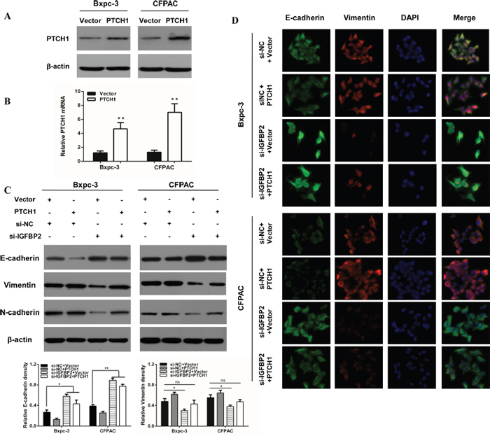 Overexpression of PTCH1 prevents the impact of silencing IGFBP-2 on EMT markers.