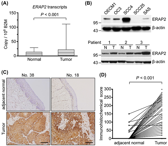 Overexpression of ERAP2 in OSCC tissues.