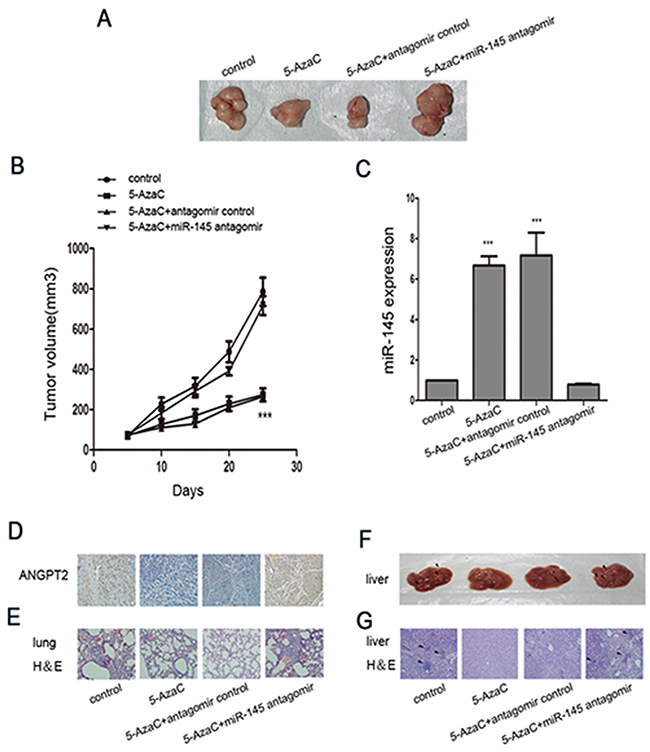 Treatment with 5-AzaC with or without miR-145 antagomir modulated invasion and metastasis in tumor-bearing nude mice.