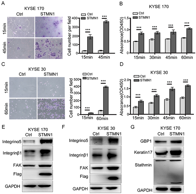 Stathmin increased ESCC cell adhesion to FN by promoting integrinα5β1/FAK expression.