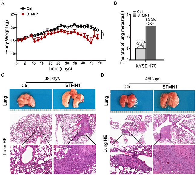 Stathmin overexpression increased ESCC cell lung metastasis in vivo.