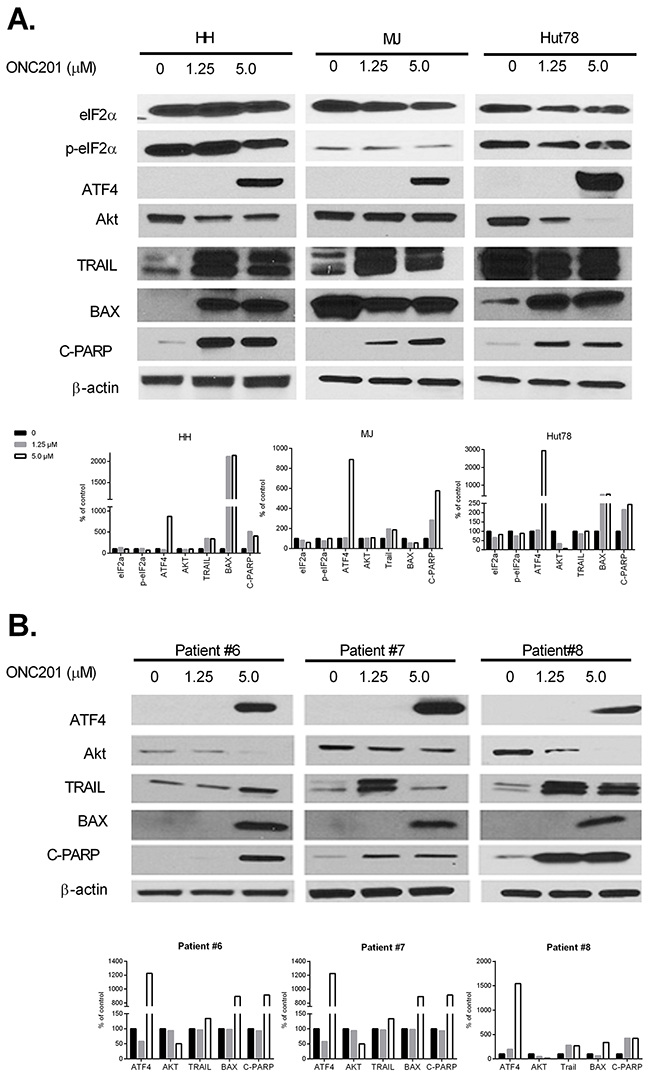 ONC201 upregulates ATF4, downregulates Akt, and induces TRAIL in CTCL cell lines and primary Sézary cells.