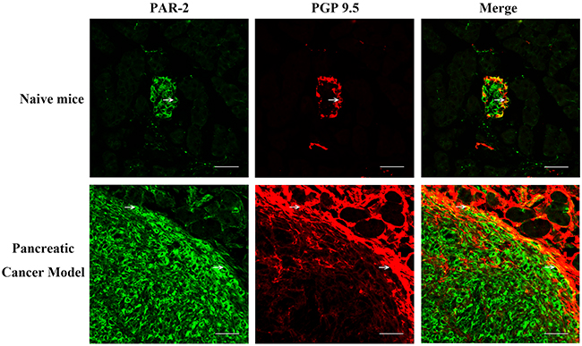 Immunofluorescence assay for PAR-2 and PGP 9.5 in pancreatic tissue specimens from naïve mice.