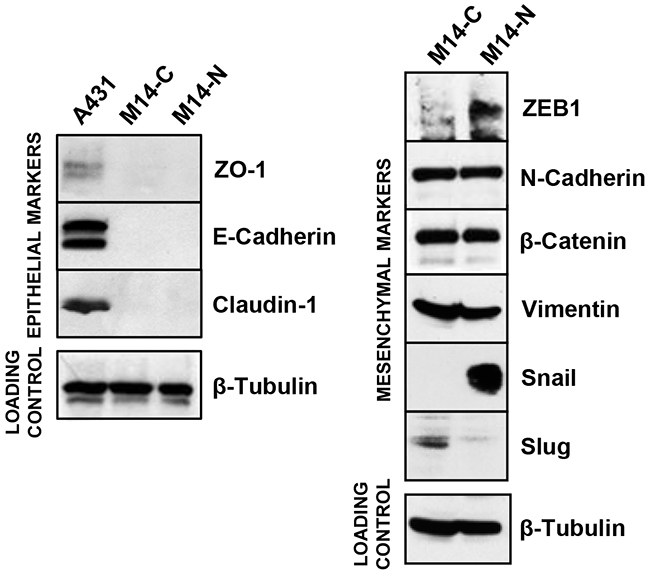 Expression of EMT markers in M14 cell clones.