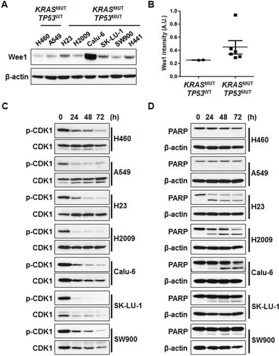 AZD1775 induces cell death regardless of p-CDK1 inhibition.