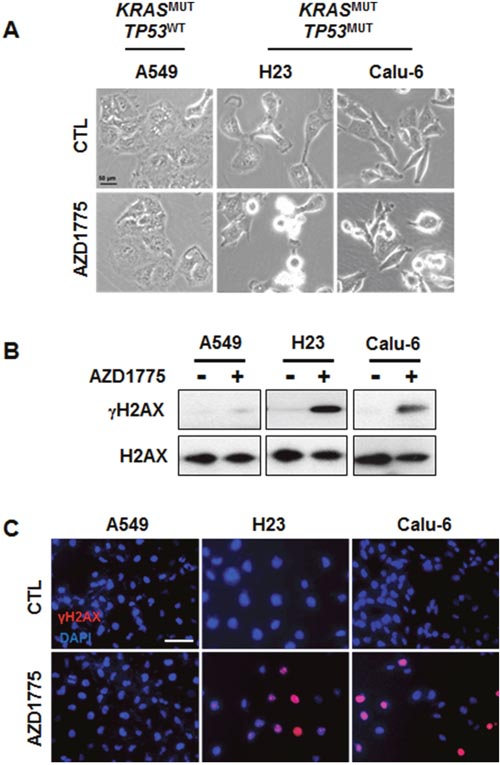 AZD1775 treatment causes DNA damage in KRASMUT/TP53MUT lung cancer.
