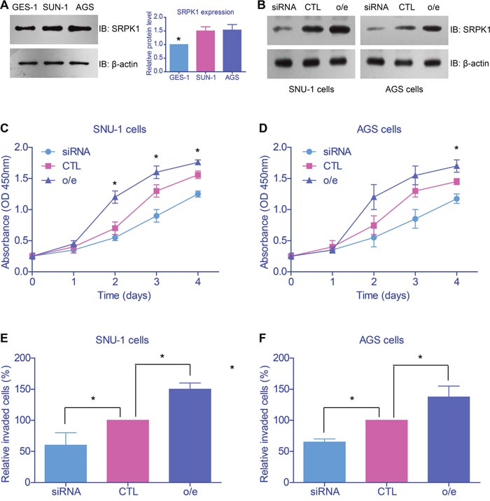 SRPK1 promoted proliferation and invasion of gastric cancer cell lines.