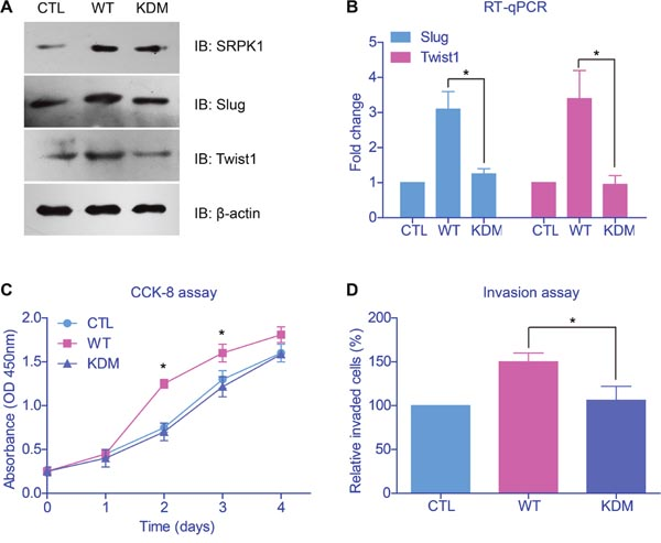 Catalytic activity of SRPK1 was critical in promoting tumor progression.