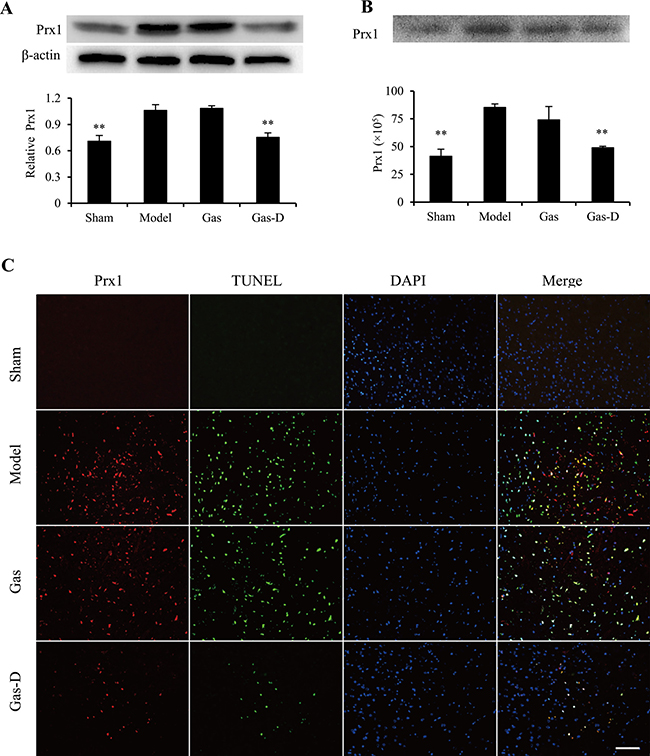 Effects of gastrodin (Gas) and its derivative (Gas-D) on the expression and spillage of peroxiredoxin 1 (Prx1) in transient MCAO rats.