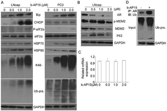 b-AP15 treatment induced accumulation of ubiquitinated proteins, ER stress and AR inhibition.