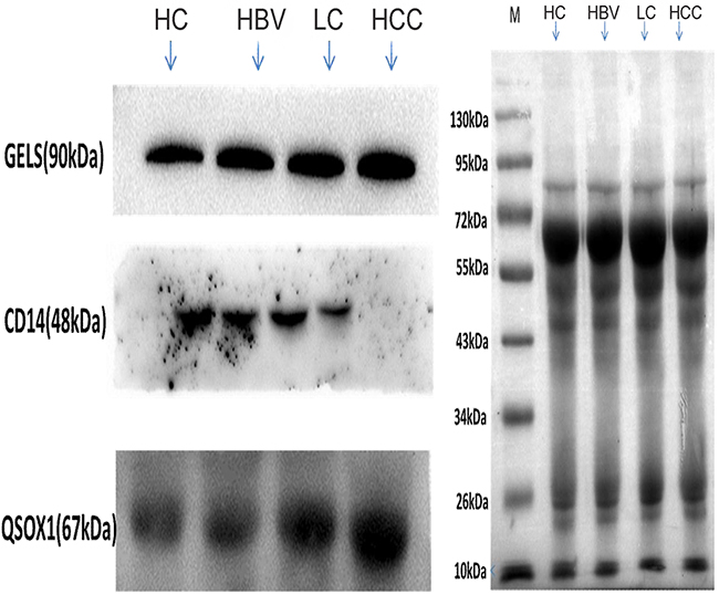 Validation of three differentially expressed proteins (GELS, QSOX1 and CD14) by Western blot analysis.