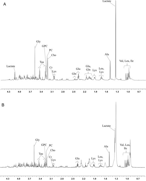 The HR-MAS MR spectra (11.7T) obtained using core needle biopsy specimens show the peaks of each metabolite.