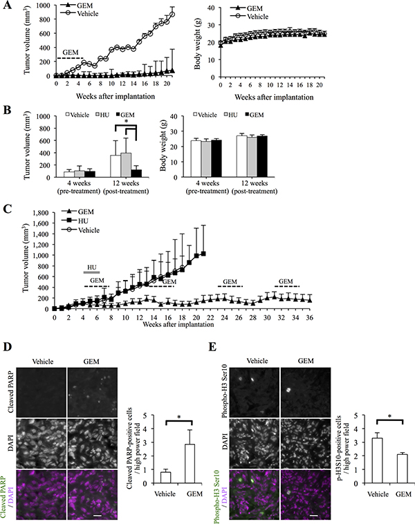 Systemic gemcitabine administration inhibits tumor initiation and progression of high-grade meningioma and provides long-term control.
