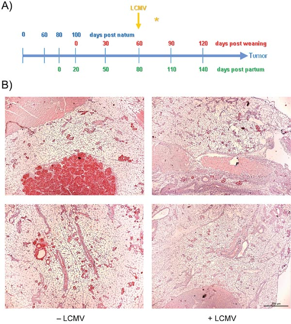 Therapeutic effect of LCMV immunization starting early in tumor growth.