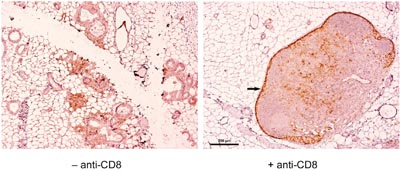 Presence of PD-L1+ lymphocytes in the mammary glands of NP8 mice when infected at day 60 pw, which were eliminated in mice treated before with anti-CD8 antibodies; the dark staining of cells within the capsules of lymph nodes (arrow on the right picture) was caused by an abundant presence of macrophages (Wanger et al. unpublished), which are not removable by anti-CD8 antibodies and therefore served as an internal control.