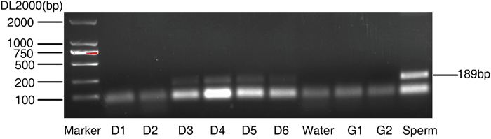 Amplification of Y-chromosomal sequences from blastocyst culture medium.