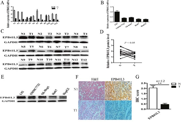 EPB41L3 was significantly downregulated in HCC tissues and HCC cell lines.