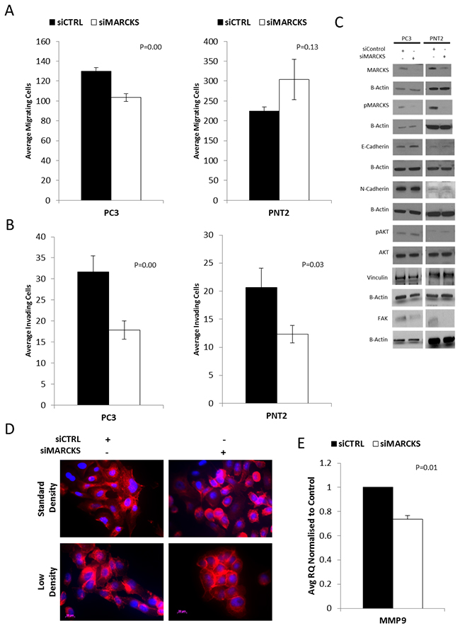 MARCKS promotes invasion and is associated with altered actin patterning.