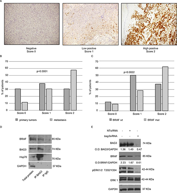 Analysis of BAG3 expression in human melanoma's metastases and its functional correlation with BRAFV600E.