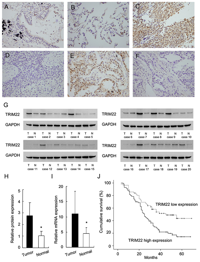 Expression of TRIM22 in non-small cell lung cancers.
