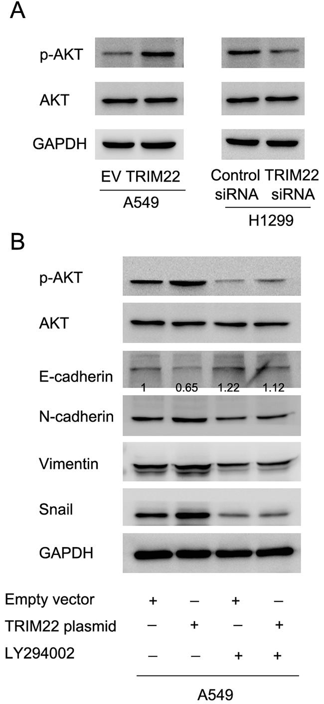 TRIM22 regulates epithelial-mesenchymal transition through activation of PI3K/AKT signaling.