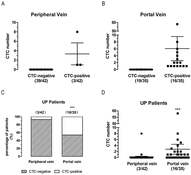 CTCs detection in first reflux vein blood is more sensitive than in peripheral blood in un-paired non-metastatic (UP) patients.
