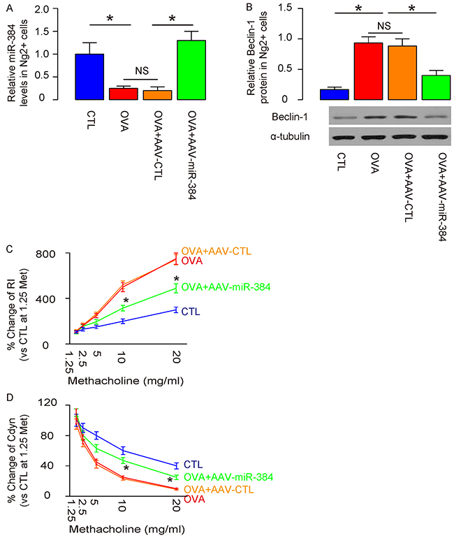 Overexpression of miR-384 in ASM cells significantly reduces ASM cell autophagy and attenuates OVA-induced airway hypersensitivity.