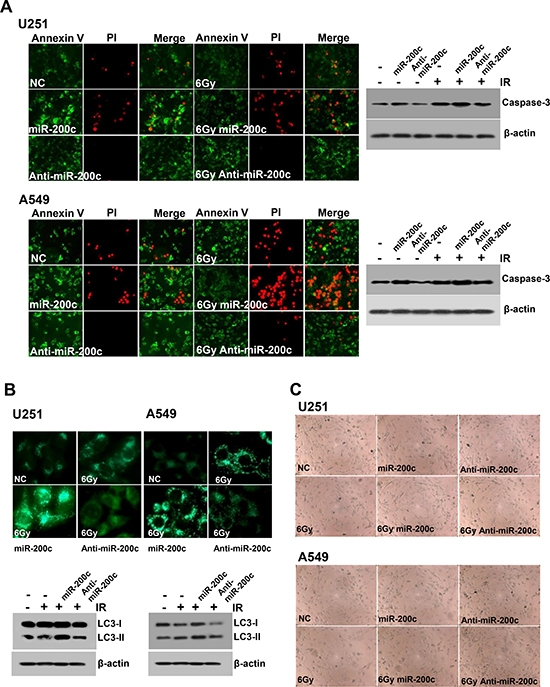 Effects of miR-200c on apoptosis, autophagy, and senescence.