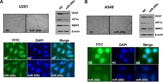 Effects of miR-200c on vascular tube formation.