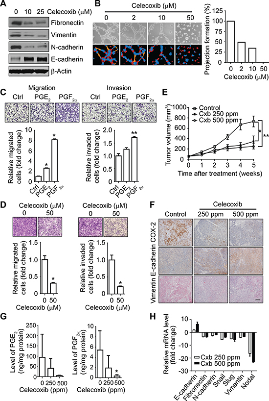 The COX-2 pathway regulates the EMT-like phenotype and invasiveness of IBC cells in vitro and tumor growth in vivo.