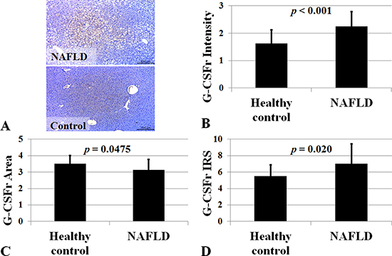 G-CSF receptor expression in NAFLD subjects.