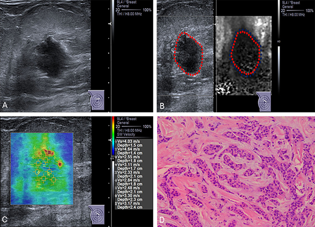 Conventional US and ARFI elastography of a 83-year-old female patient.