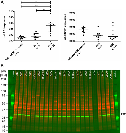 Oncotarget   EB1 protein alteration characterizes sporadic