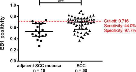 Oncotarget | EB1 protein alteration characterizes sporadic