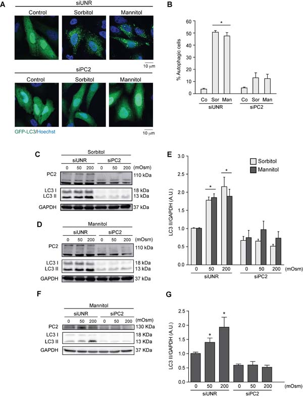 PC2 is required for hyperosmotic stress-induced autophagy.